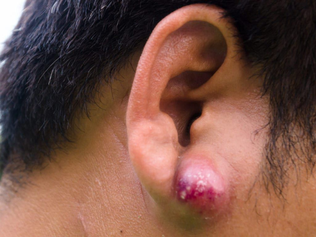 An abscess present on a patient's ear