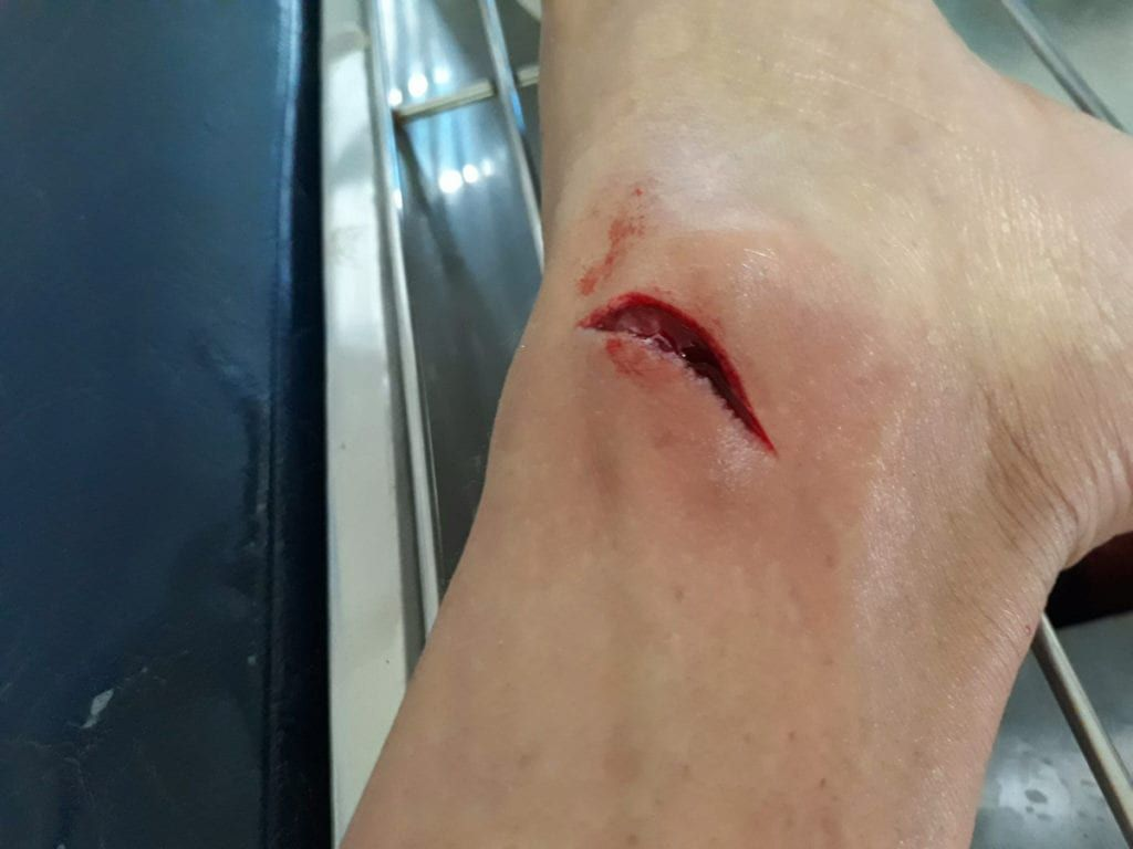 An open cut in a patients ankle
