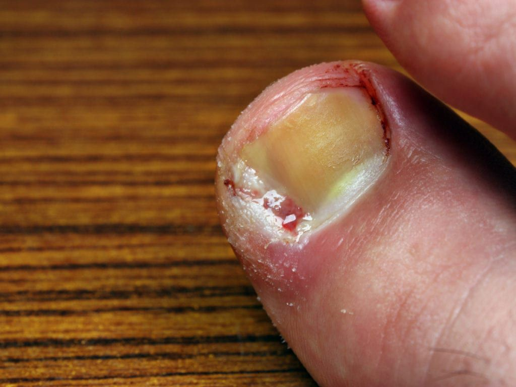 An infected ingrown toenail weeping blood and pus