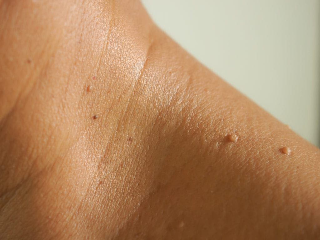 Wart And Skin Tag Removal At Md First Primary Urgent Care